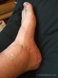 Swollen ankle almost 4 months after the frame was removed