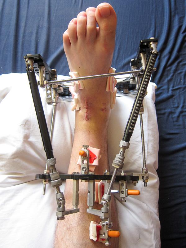 My Knackered Ankle Life With An Ilizarov Frame Part I